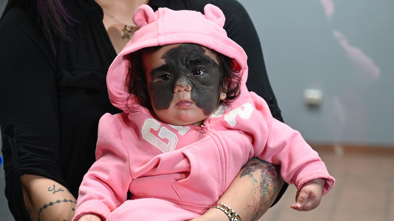 U.S. Toddler With Rare Skin Condition Gets First Treatment in Russia