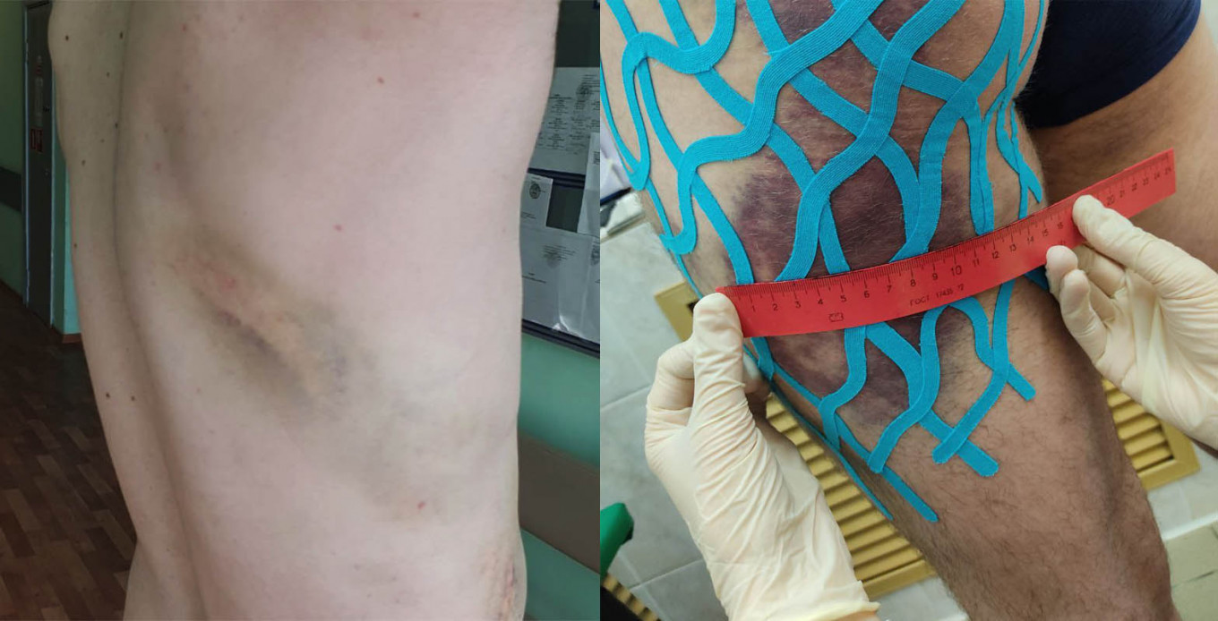 Images of protesters injured in Belarus HRW